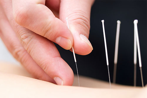 Treating Patient with Acupuncture